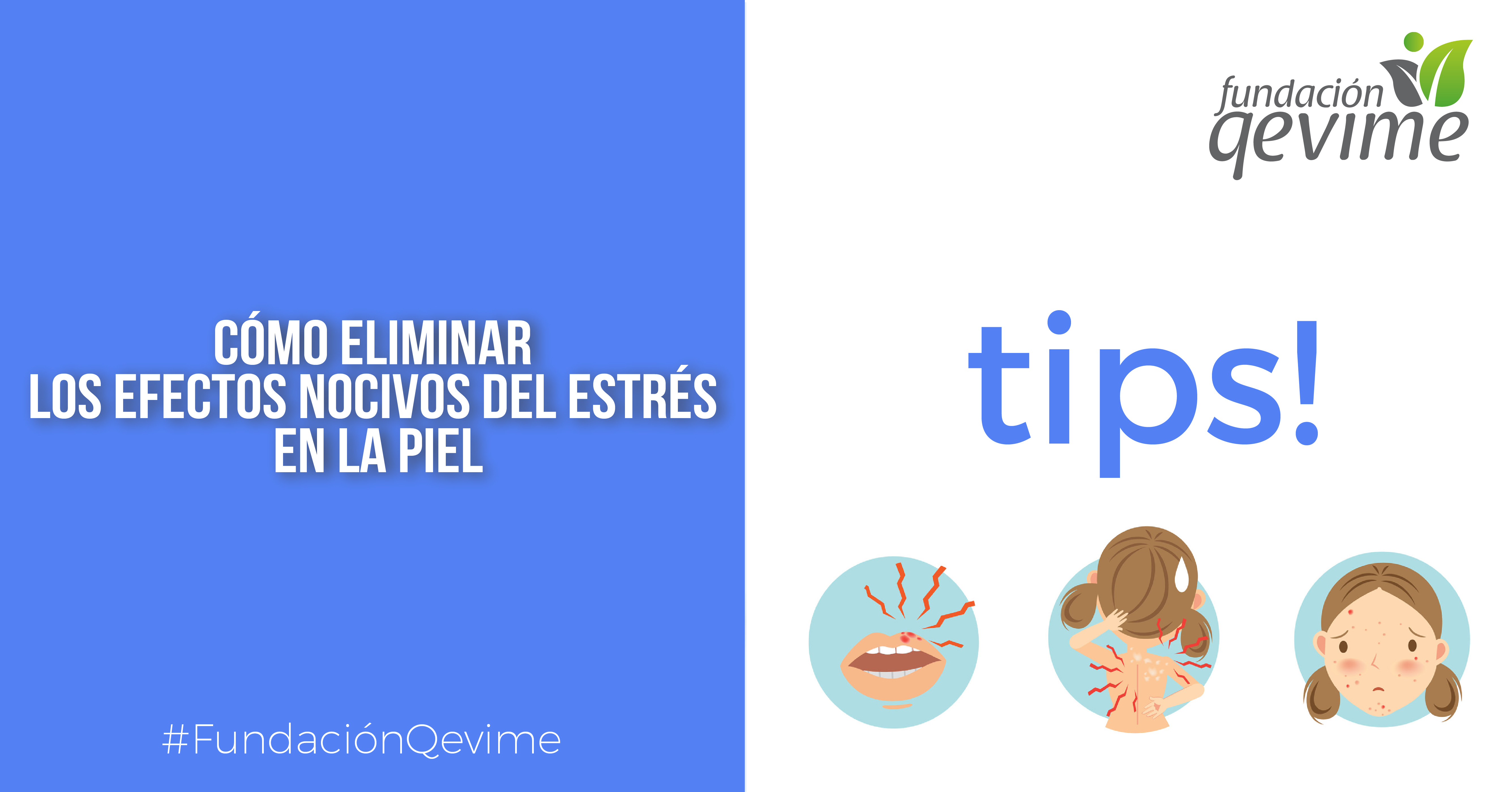 Tips 3-01